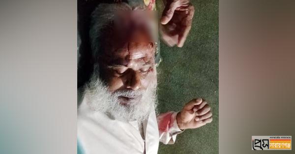 রূপগঞ্জে আ'লীগ নেতাকে কোপানোর অভিযোগ